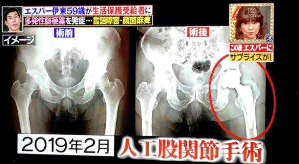 人工股関節手術